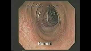 Der Darm, Darmschlacken können bis zu 15 Kilo und mehr wiegen! Eklig aber wichtig!